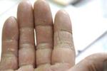 真菌过敏易发生 预防措施很重要