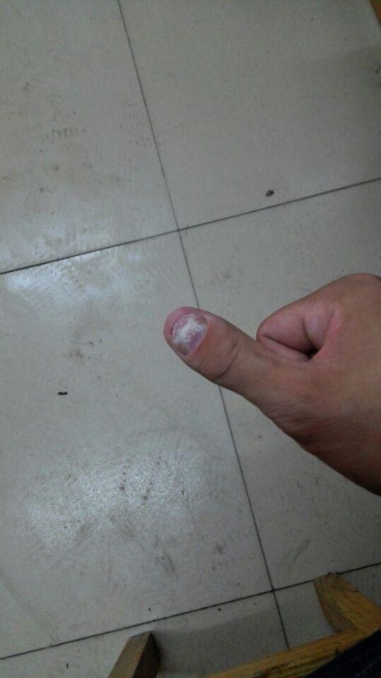 大拇指上长出来有部分是白色