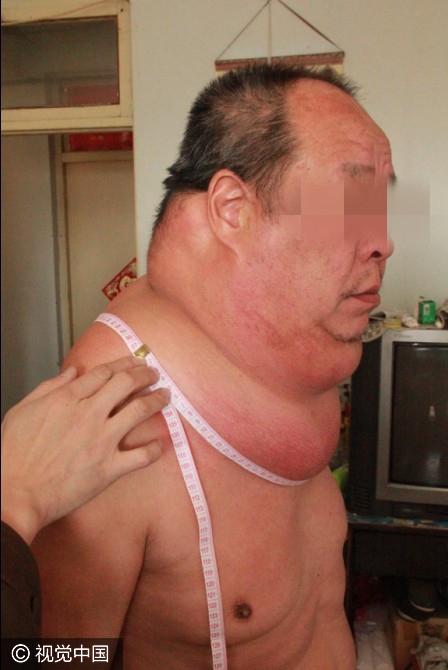【转】北京时间      53岁男子得怪病 脖子周长97厘米起床困难易摔倒 - 妙康居士 - 妙康居士~晴樵雪读的博客