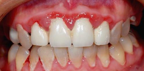 保护牙齿:牙结石为什么会长在牙龈下面? - 一统江山 - 一统江山的博客