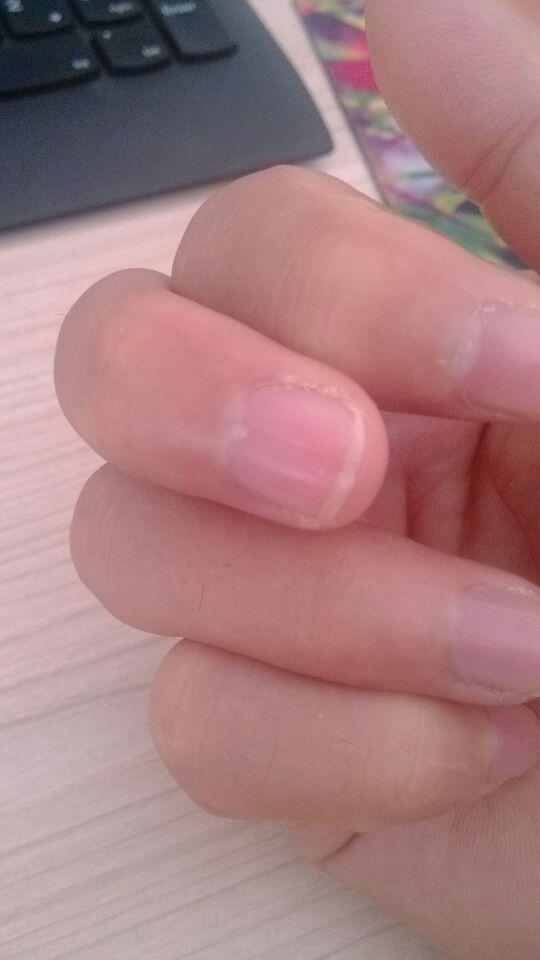 就一根手指指甲有凹陷
