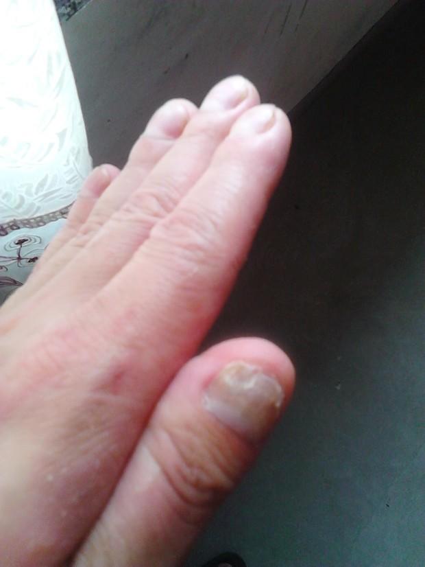 左手手指和手掌皮下长水泡很痒有好几年了之后指甲也烂了用什么药好