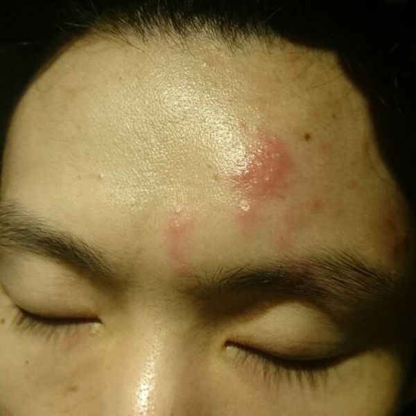 突然左耳朵淋巴肿大,额头和头皮有点痒然后过几天我的额头就成这