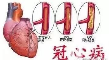 它是天然血管支架,通血管、防心梗,常吃不用再担心血栓~ - 真光 - 真光 的博客