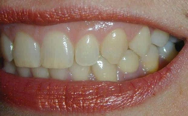 儿童牙龈增生怎么治