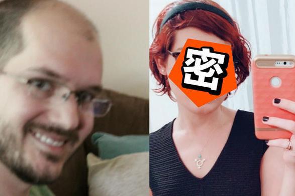 秃头大叔连续服用雌性激素一年,竟然变成了辣妹!